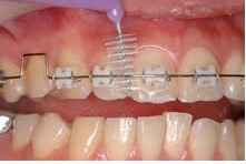 矯正中の歯磨きはどうしたらいい?