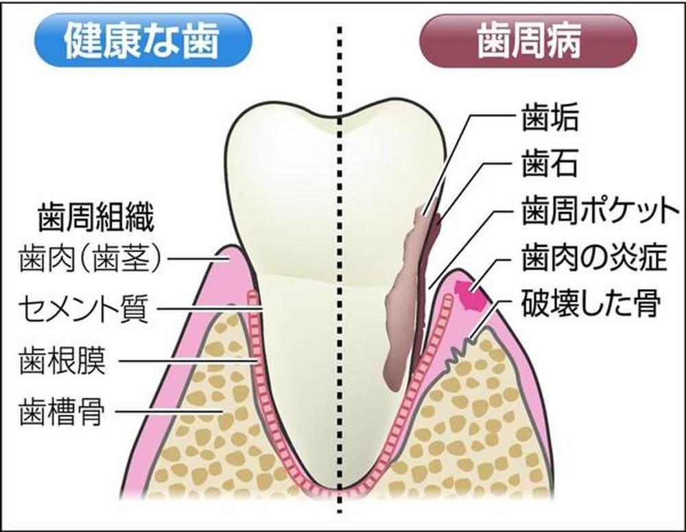 歯周病について…!