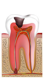 神経まで進行した歯