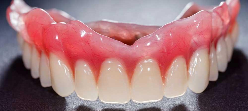 高精度な入れ歯作製