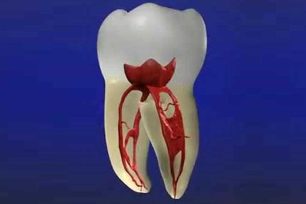 虫歯・歯周病に罹患