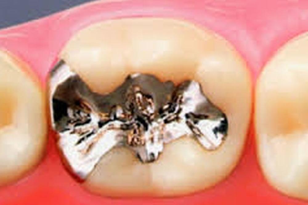 銀歯(保険適用)